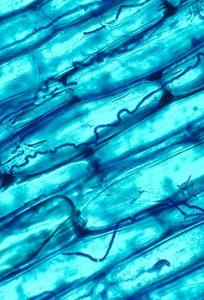 An example of fungi in plants. Neotyphodium coenophialum (dark blue, curved lines) in the leaf tissue of tall fescue grass.