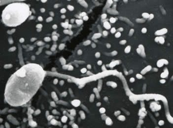 Microsporidia: tiny parasites with big impacts