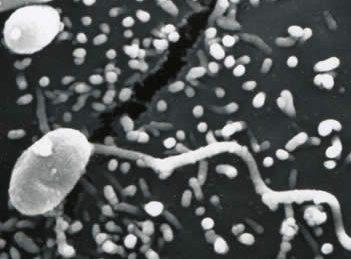 microsporidia harpooning a cell