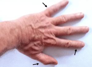 arthritis, aging, hand, Ironman, training, exercise,