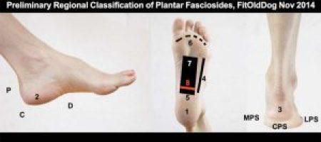 plantar fasciitis exploratory research