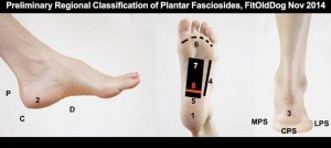 sore feet: warning pain: plantar fasciitis exploratory research