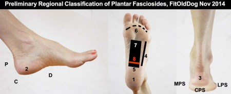 Plantar fasciitis distribution