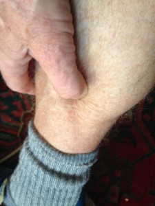 30-second plantar fasciitis cure, for a tight medial calf muscle.