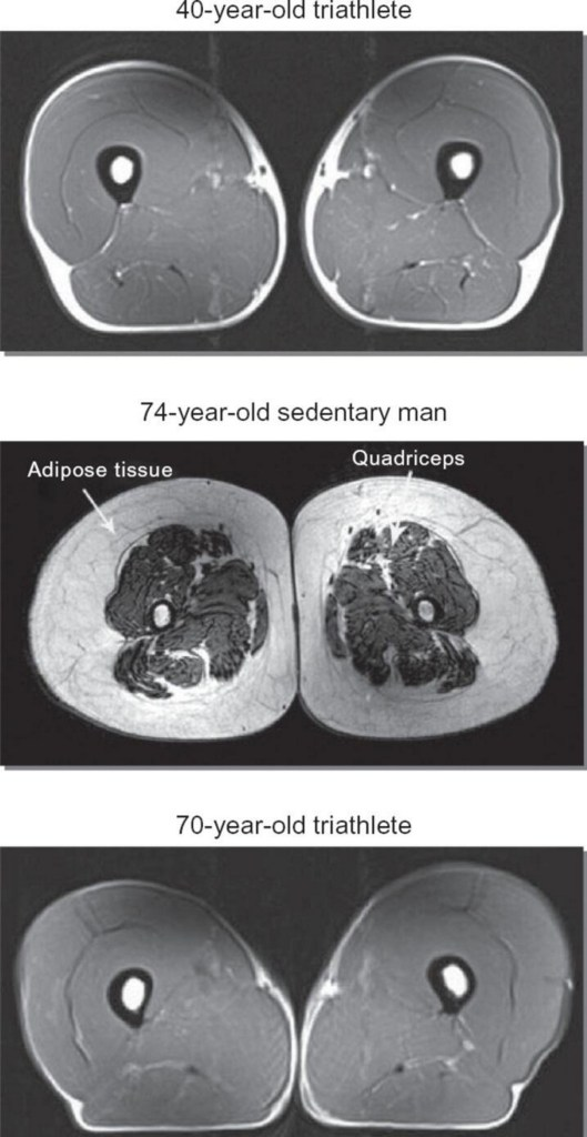 balance and aging: ironman with vascular disease, three mri scans