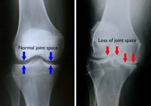 knee pain; bone on bone, due to impact stress