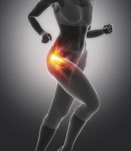 muscle strain: gluteus minimus, iliacus, psoas