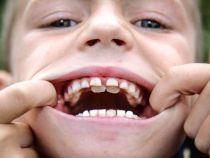"""""""Baiatul-rechin"""": un copil din Anglia are doua perechi de dinti"""