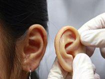 Implanturi de urechi artificiale, create prin imprimare 3D