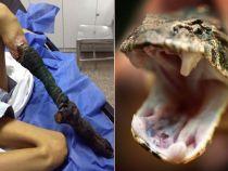 Picior necrozat de la o muscatura de sarpe