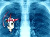 Doi doctori din Timisoara vor monta un plaman artificial unui ranit in incendiul din Bucuresti