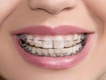 Cum folosești corect un aparat dentar?