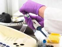 Coronavirus în România: 84 de decese raportate, unele produse în octombrie 2020 și descoperite după verificări