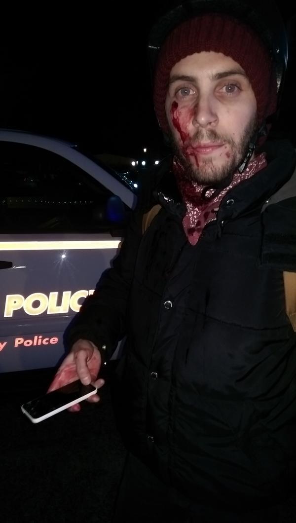 ferguson blood protestedr