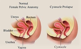 pelvic image - Taking the Fear Factor out of…..Cystocele