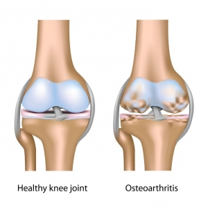 knee pain osteoarthritis Atlantic Medical Group Canton