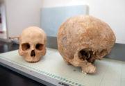 Abb. 3 Der von Miguel G. Aracil in einem Museum in Barcelona forographierte, anomale 'Riesen-Schädel'