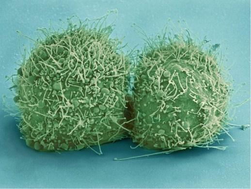 hela-cells-544318_640
