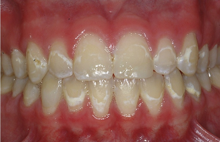 White spot lesions after braces
