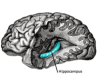 Alteración de la conectividad funcional y anatómica en la esquizofrenia