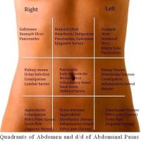 Quadrants of Abdomen and of Abdominal Pains