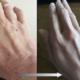 アトピー 手湿疹 乾燥肌 改善 保湿剤