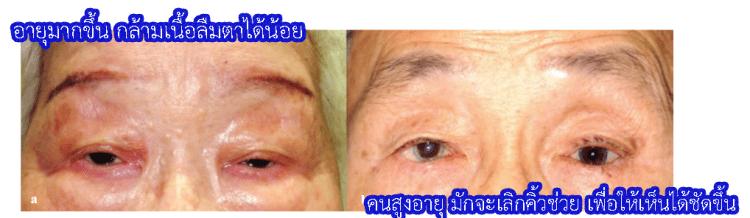 อายุมากขึ้น ตาจะปรือปิดลง ทำให้มองเห็นไม่ชัด , มักจะเลิกคิ้วช่วยให้เห็นชัดขึ้น