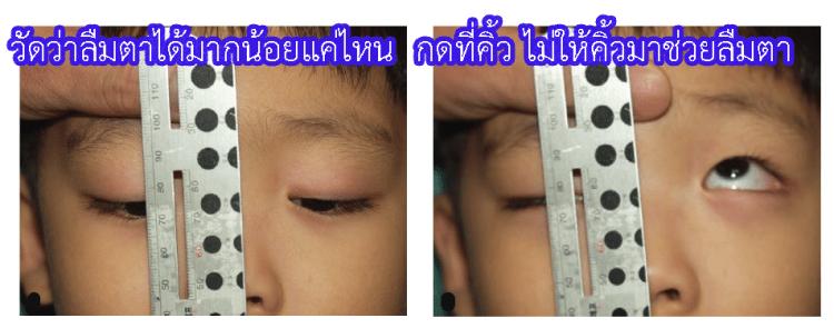 ตรวจกล้ามเนื้อลืมตา ว่าออกแรงลืมตาได้มากน้อยแค่ไหน