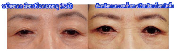 หนังตาตก  ,การทำผ่าตัดตัดหนังตา และเซตชั้นตา ให้ชั้นตาดูชัดขึ้น และปรับกล้ามเนื้อตา ให้ตาโตขึ้น