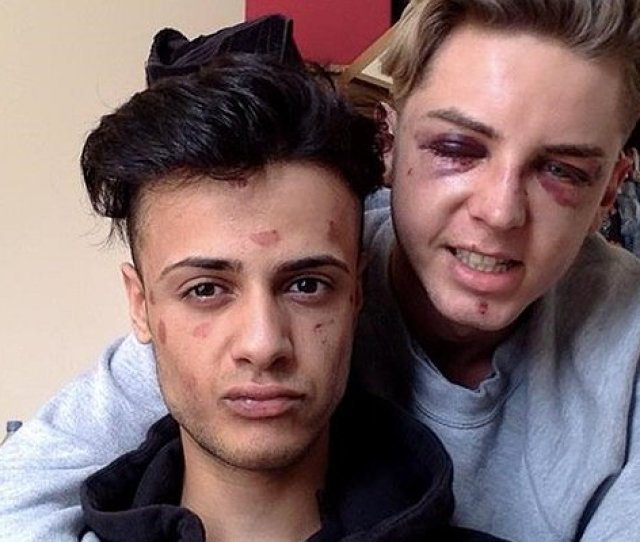 Ill Never Forgive Them Young Gay Couple Recall Horror Of Brutal Homophobic Attack