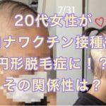 20代女性がコロナワクチン接種後に円形脱毛症に!?その関係性は?