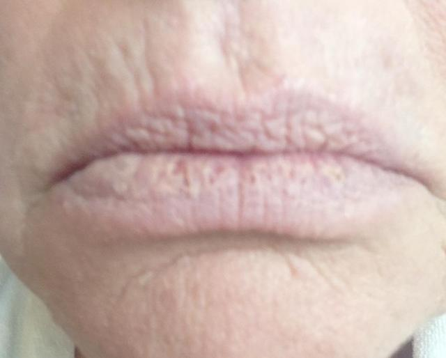 wrinkly old lady lips