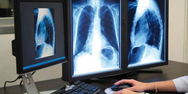 Tuberculose: les chiffres inquiétants de l'OMS