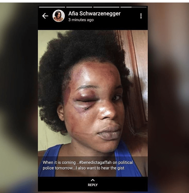 Photo: Benedicta Gafah Finally Speaks Why Her Man Brutally Beat her