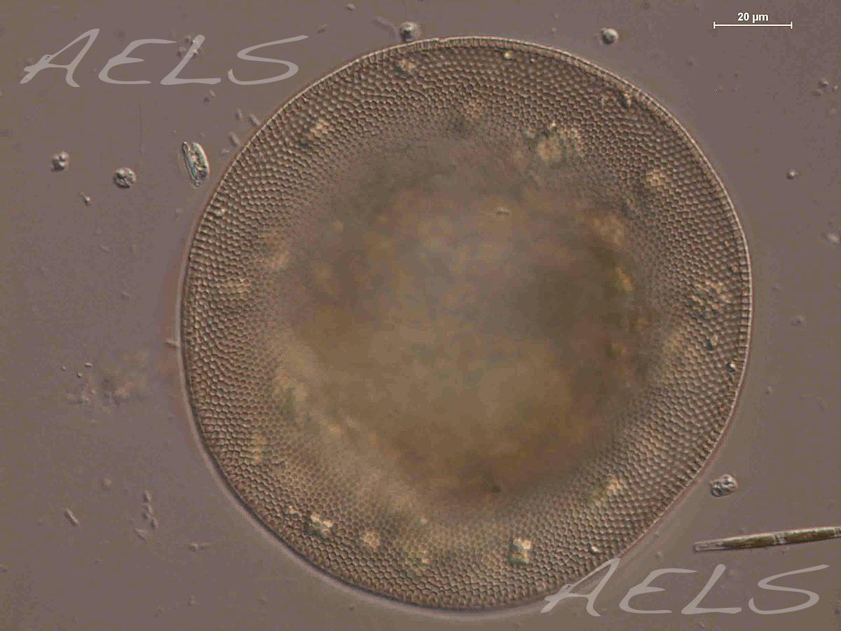 Microfotografía ameba Arcella