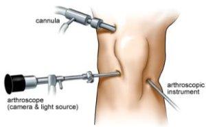 síndrome do trato ou banda iliotibial