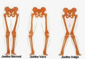 tipos-joelhos geno varo-síndrome do trato ou banda iliotibial