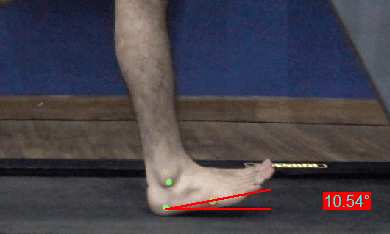 Achilles Tendinopathy_Foot Inclination Angle