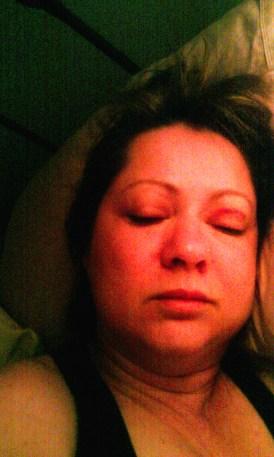 Victim Bruising to face