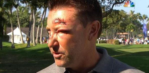 Robert Allenby after the incident in Hawaii during the Sony Open in January 2015.