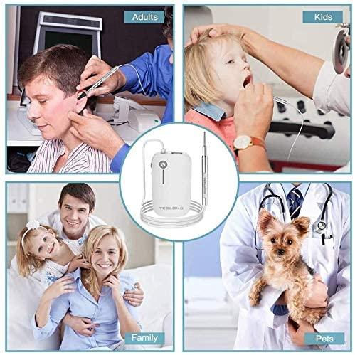 Teslong Otoscope 4.3mm HD Inspection Camera, Ear Microscope, 6 Adjustable LED Lights Works with iPhone, iPad & Android 4