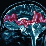 Epilepsia y Autismo: Características y factores relacionados