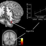 Los hermanos de personas con autismo presentan una menor empatía
