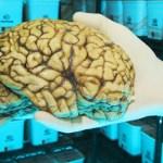 Autopsias de cerebros muestran la firma molecular del autismo