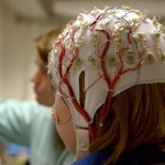 Las niñas con autismo leve son propensas a tener epilepsia severa