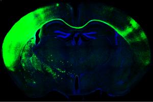Sección de cerebro de ratón al microscopio. En verde las neuronas que cruzan de un hemisferio a otro formando el cuerpo calloso. / Laboratorio de Marta Nieto. CNB-CSIC