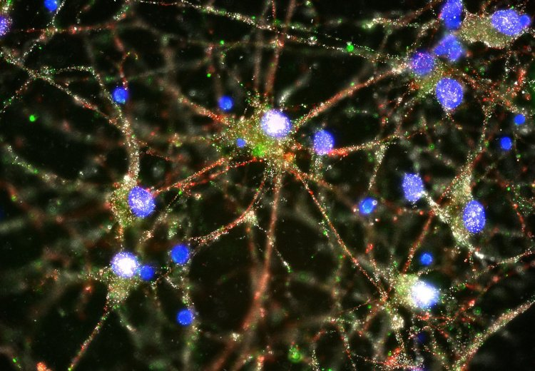 Una imagen de un microscopio de fluorescencia que muestra proteínas C4, en verde, que se encuentra en las sinapsis en un cultivo de neuronas humanas. Heather de Rivera / Mccarroll Lab / Harvard