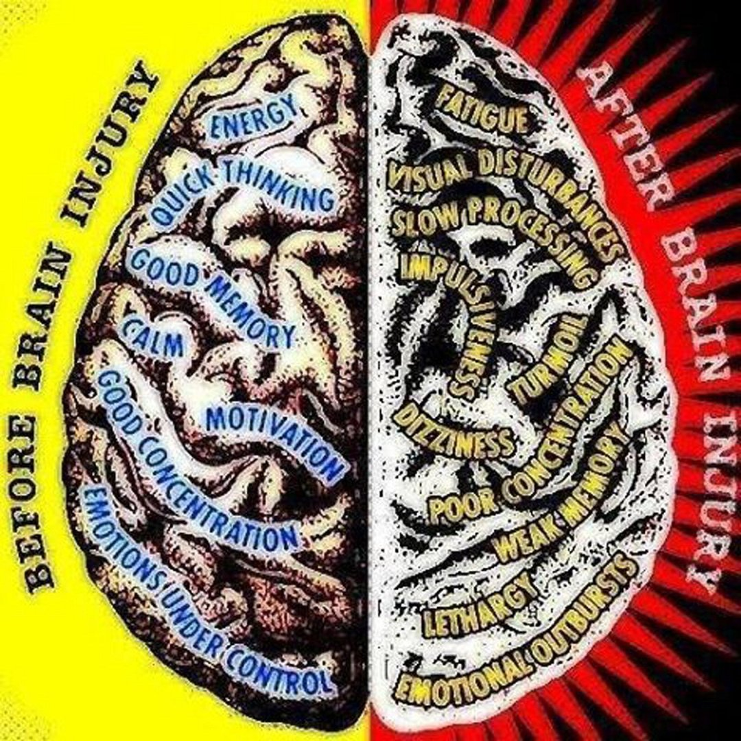 Brain before-after