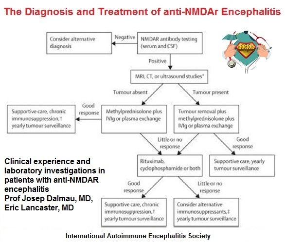 NMDA_Dx_and Treatment