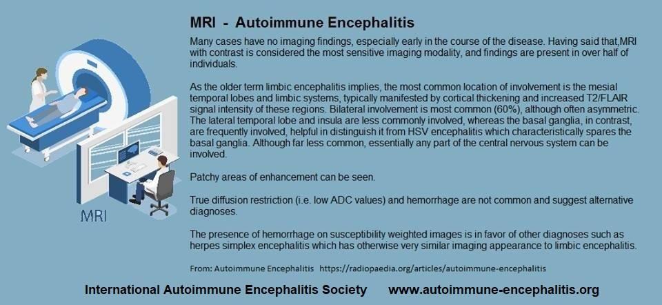 mri - Memes About Autoimmune-Encephalitis